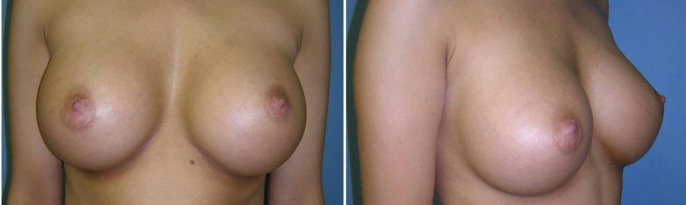 Breast Image 7 after implants  C Cup Breast